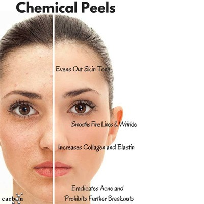 Chemical Peeling For Acne Scars Acne Skin Amp Face In