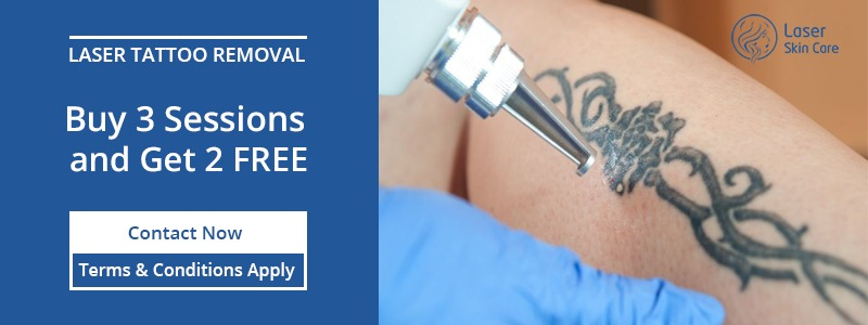 Laser Tattoo Removal Buy 3 Sessions and Get 2 Free