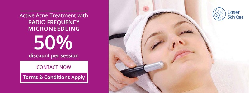 RF-Microneedling 50% Discount per Session