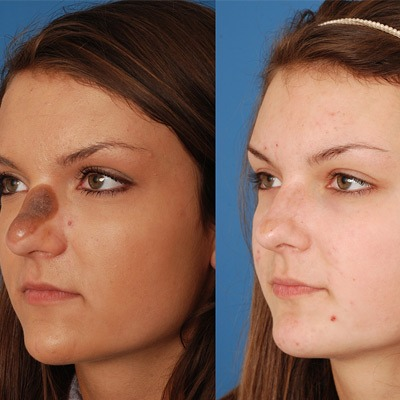 Skin Lesion Removal in Dubai, Abu Dhabi & Sharjah