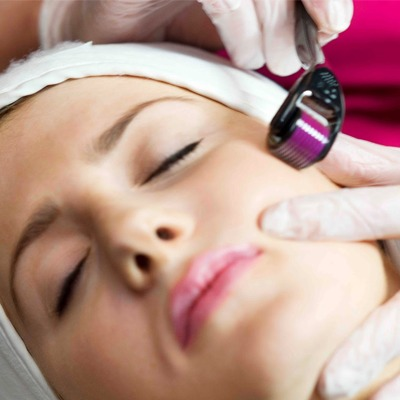 Filorga Mesotherapy Roller Treatment