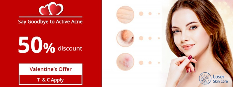 Say Goodbye To Active Acne This Valentine Day With 50 Off