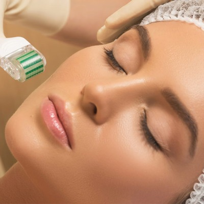 RF Fractional Microneedling in Dubai Reviews