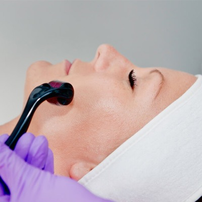 Collagen Induction Therapy Dubai