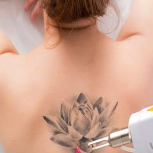 Bad Ink - Recognizing When It's Time for Laser Tattoo Removal