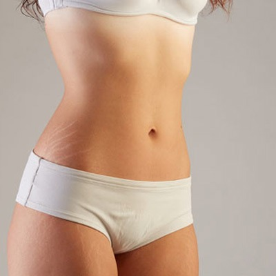 Does Laser Stretch Mark Removal Work on White Stretch Marks