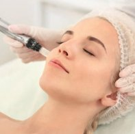 Micro Needling for Stretch Mark Treatment