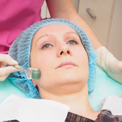 Microneedling Treatment in Dubai & Abu Dhabi