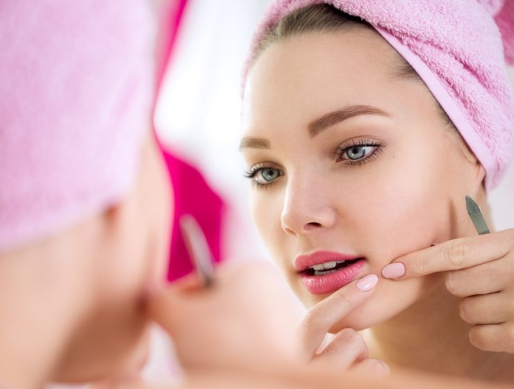 Here is How to Get Rid of Pimples Fast