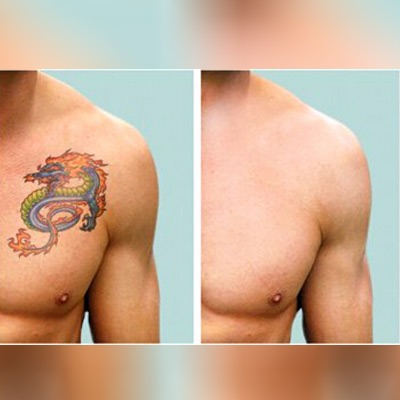 What to Expect After Laser Tattoo Removal?