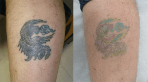 Best Tattoo Removal for Green Ink