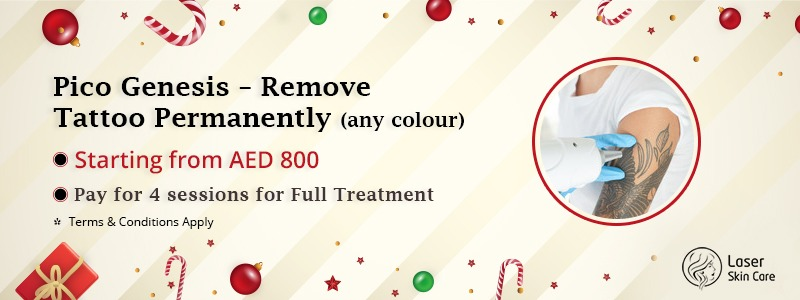 Pico Genesis Remove Tattoo Permanently AED 800 Only