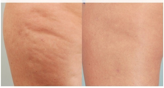 Cellulite Removal Treatment in Abu Dhabi