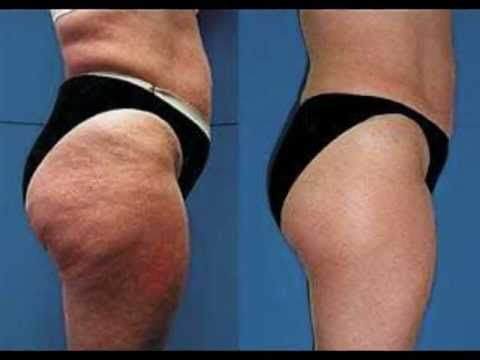 Cellulite Removal Treatment in Dubai & AbU dhabi