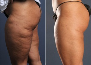 Cellulite Removal Treatment in Dubai Abu Dhabi & Sharjah