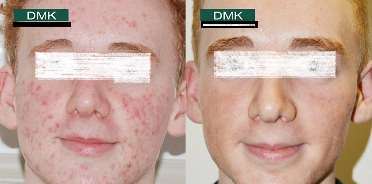 DMK Enzyme Therapy in Abu Dhabi