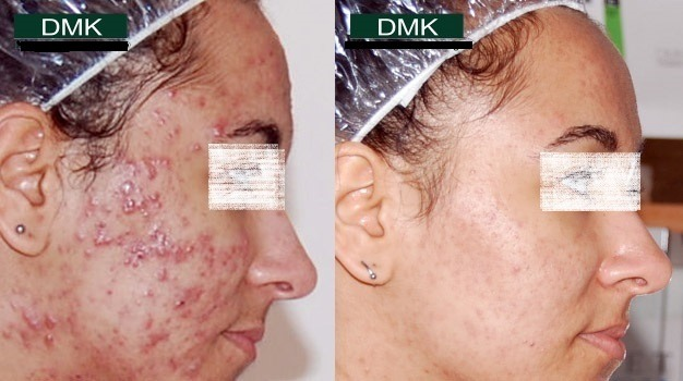 DMK Enzyme Therapy in Dubai