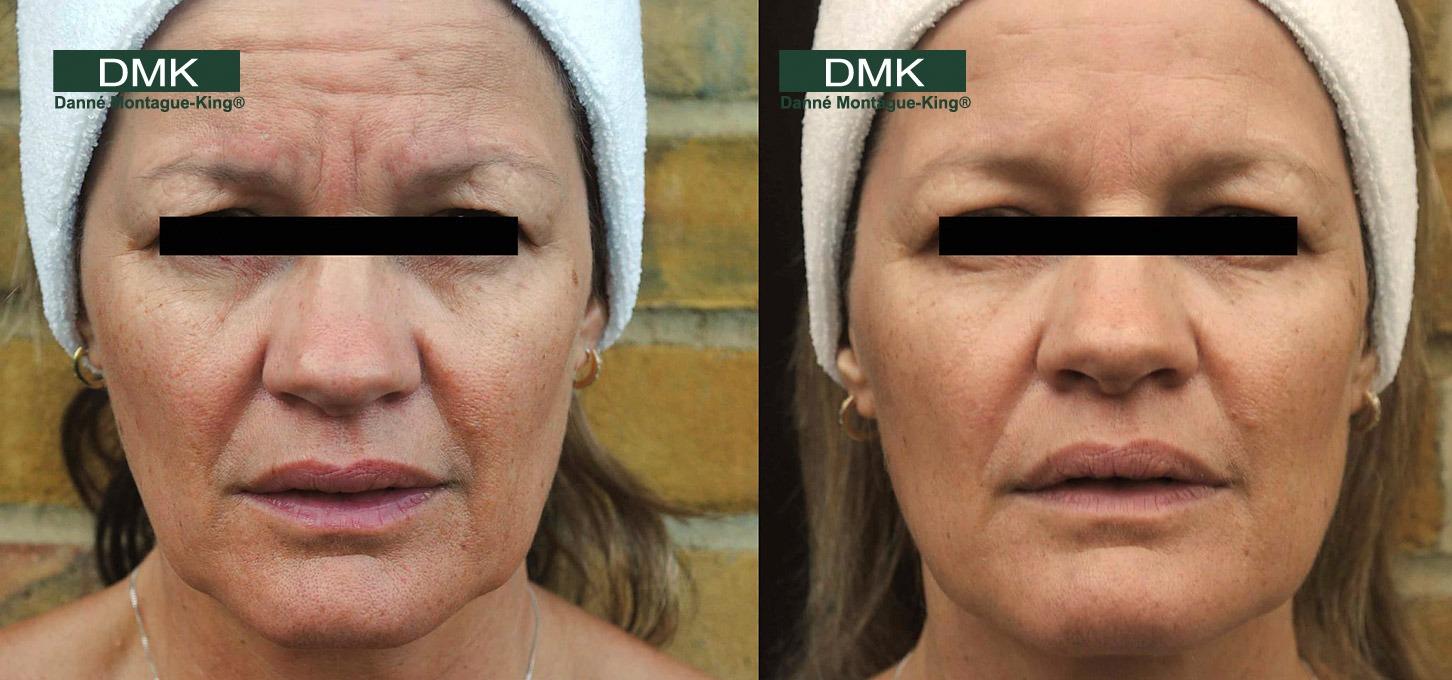 DMK Facial in Dubai & Abu Dhabi