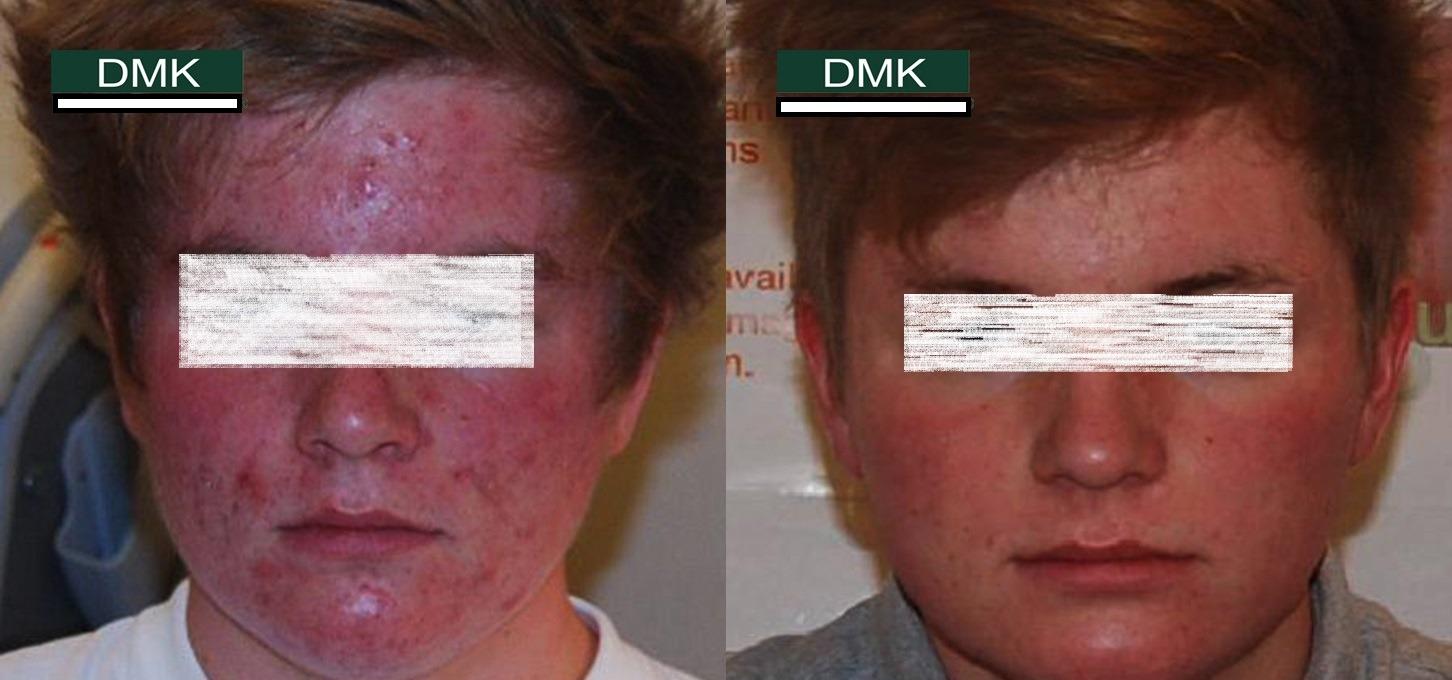 DMK Facial in Dubai