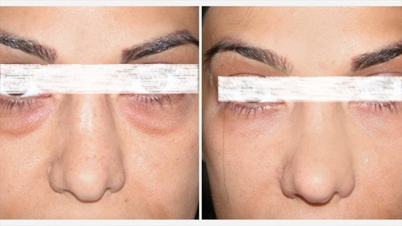 Dark circles treatment in Abu dhabi