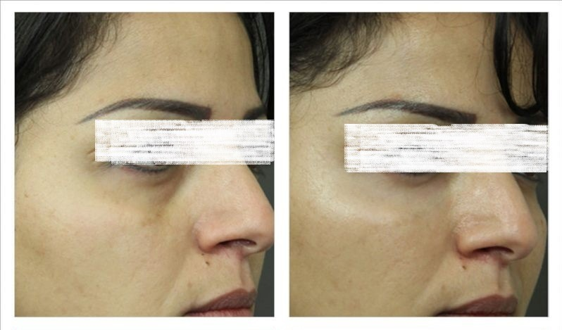 Dark circles treatment in Dubai Abu Dhabi & Sharjah
