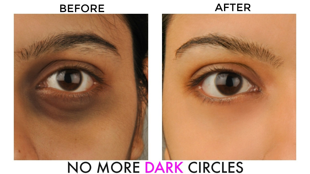 Dark circles treatment in Dubai Abu Dhabi