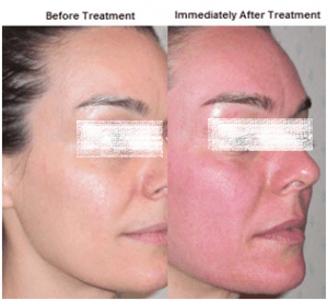 Dermapen Treatment in Abu Dhabi