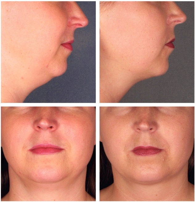 Double Chin Removal in Abu Dhbai