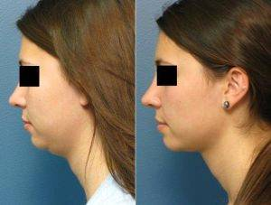 Double Chin Removal in Dubai & Abu Dhabi
