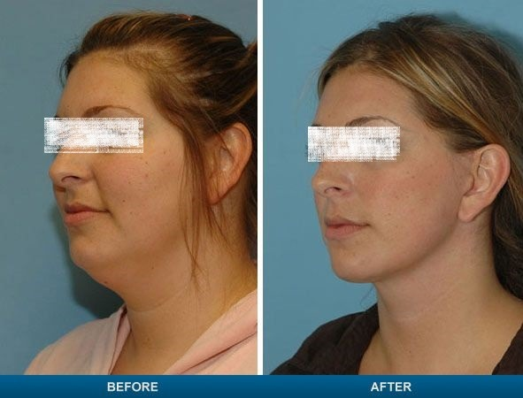 Double Chin Removal in Dubai