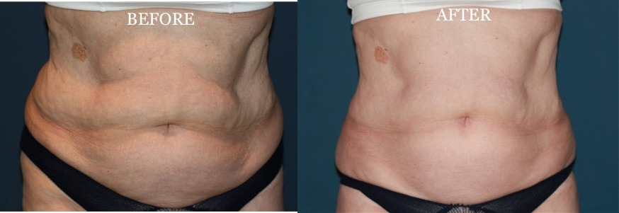 Fat Reduction Treatments Dubai Abu Dhabi & Sharjah