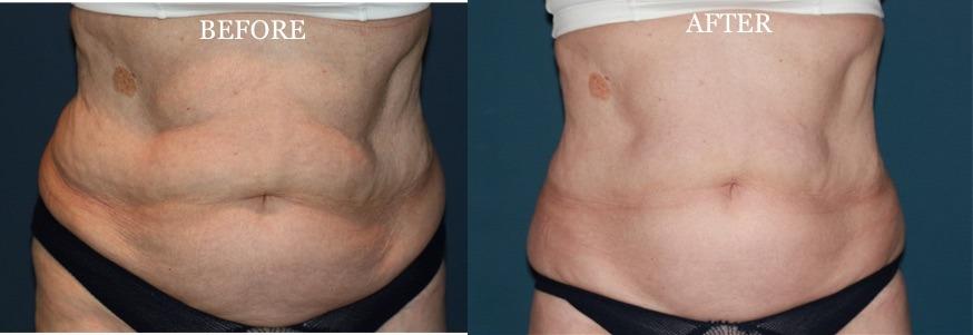 Fat Reduction Treatments Dubai Abu Dhabi & Sharjah