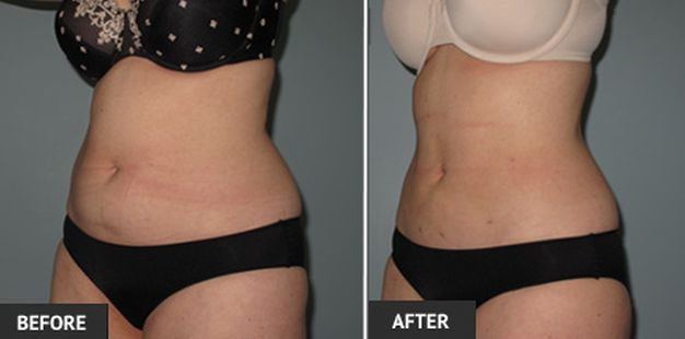 Fat Reduction Treatments in Abu Dhabi