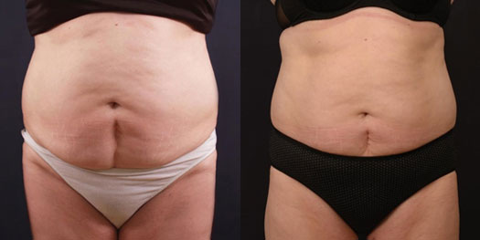 Fat Reduction Treatments in Dubai & Abu Dhabi