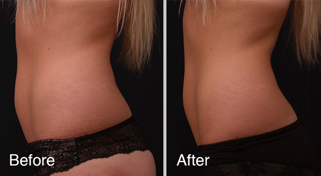 Fat Reduction Treatments in Dubai