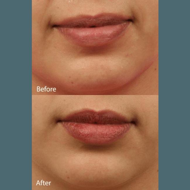Fotona 4D Lip Augmentation Dubai & Abu Dhabi