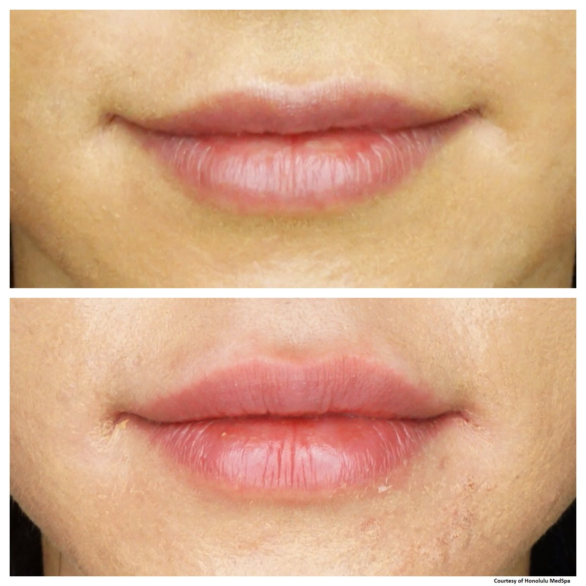 Fotona 4D Lip Augmentation in Abu Dhabi
