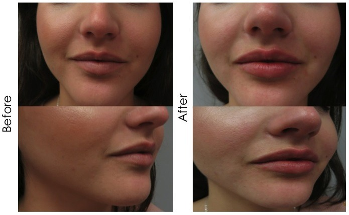 Fotona 4D Lip Augmentation in Dubai