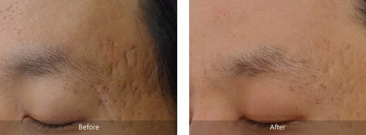 Fractional Co2 Laser Treatment Dubai