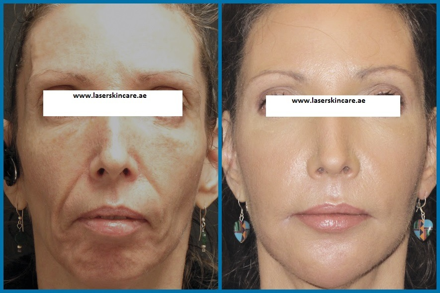 Fractional Laser and PRP therapy Dubai