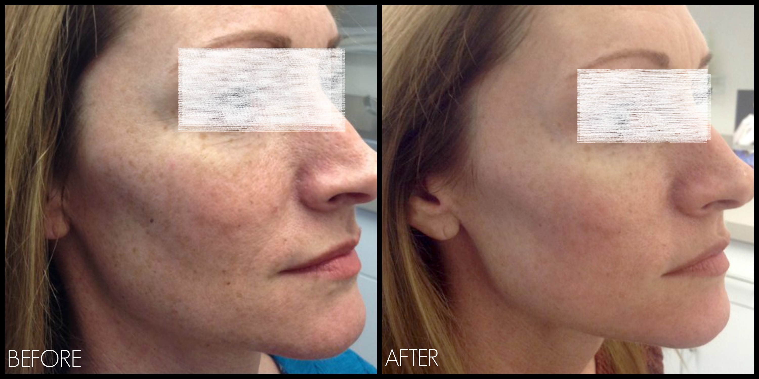 Freckles and Blemishes Treatment in Abu Dhabi