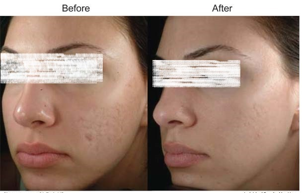 Freckles and Blemishes Treatment in Dubai Abu Dhabi & Sharjah