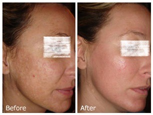 Freckles and Blemishes Treatment in Dubai & Abu Dhabi