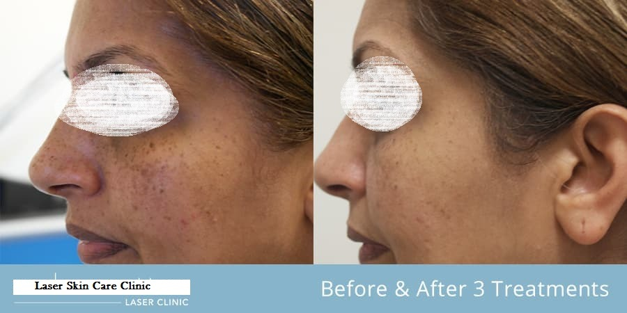 Freckles and Blemishes Treatment in Dubai