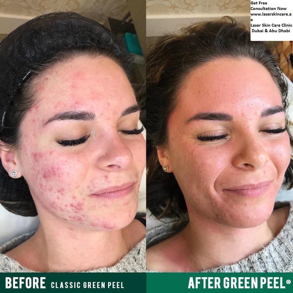 Green Peels Treatment in Dubai Abu Dhabi & Sharjah