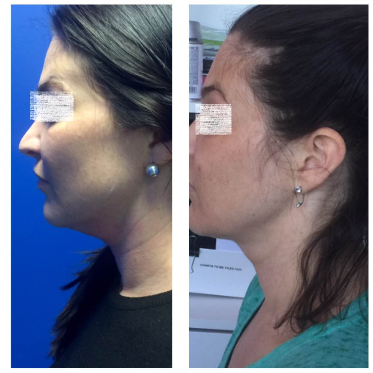 Kybella Treatment for Double Chin in Abu Dhabi