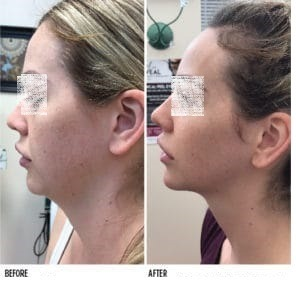 Kybella Treatment for Double Chin in Dubai & Abu Dhabi