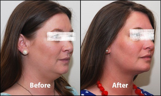 Kybella Treatment for Double Chin in Dubai