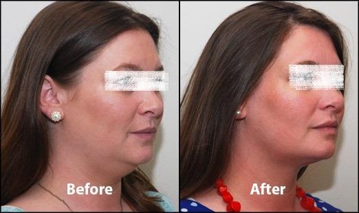 Kybella Treatment for Double Chin in Dubai