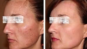 Large Pores Treatment Dubai Abu Dhabi & Sharjah